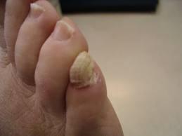 Teddington Osteopaths - How do I treat Onychauxis or Thickened Nails?